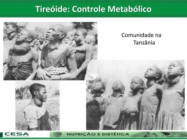 Comunidade na Tanzânia Tireóide: Controle Metabólico