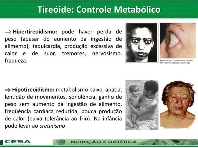  Hipertireoidismo: pode haver perda de peso (apesar do aumento da ingestão de alimento), taquicardia, produção excessiva ...