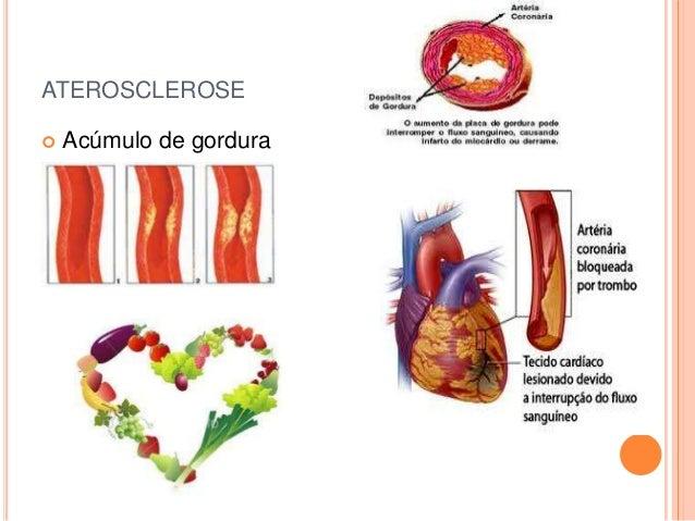 ATEROSCLEROSE   Acúmulo de gordura