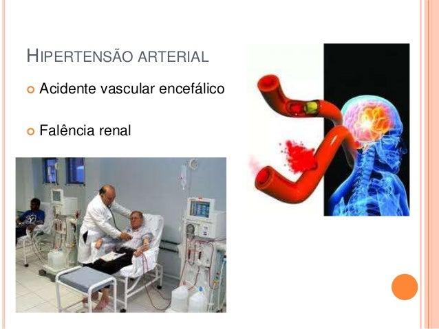 HIPERTENSÃO ARTERIAL   Acidente vascular encefálico    Falência renal