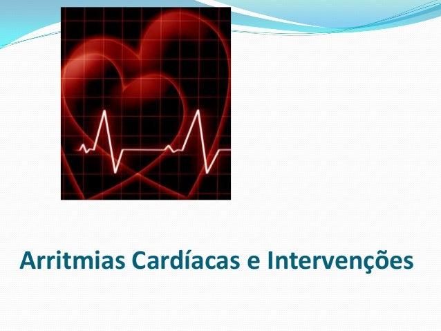 Arritmias Cardíacas e Intervenções