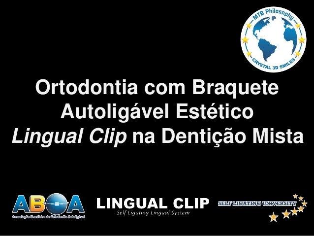 Ortodontia com Braquete Autoligável Estético Lingual Clip na Dentição Mista