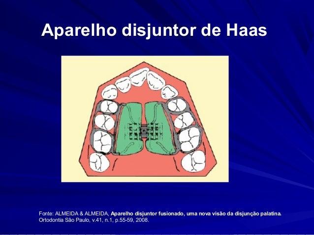 Aparelho disjuntor de Hyrax  Fonte: ALMEIDA & ALMEIDA, Aparelho disjuntor fusionado, uma nova visão da disjunção palatina....