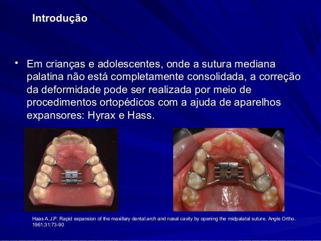 Introdução   Após o completo fechamento das suturas maxilares  medianas, o tratamento passa a ser uma combinação de  proc...