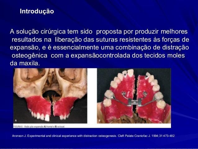 Introdução  A técnica consiste na expansão transversal da maxila,  por meio da fragilização da resistência óssea de  osteo...