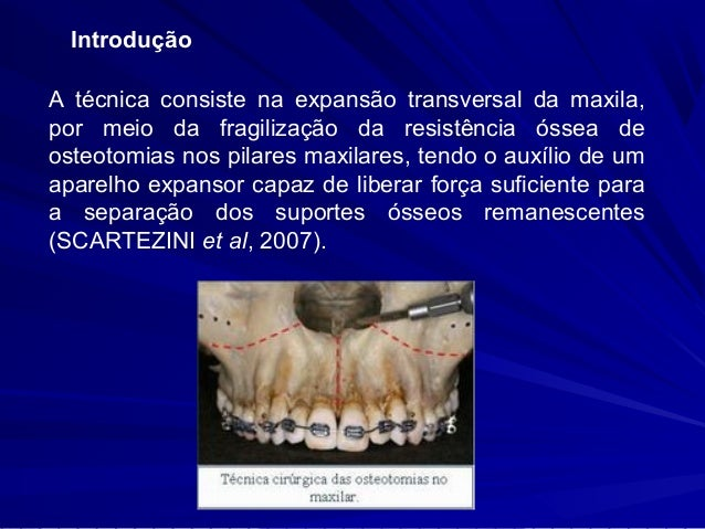 Indicações :   Tratamento de pacientes com problema transversal  deficiência maxilar maior que 5 mm,   Quando há atresia...