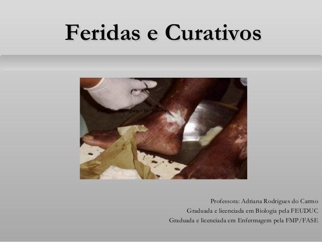 Feridas e CurativosFeridas e Curativos Professora: Adriana Rodrigues do Carmo Graduada e licenciada em Biologia pela FEUDU...