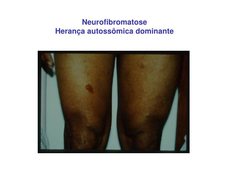 NeurofibromatoseHerança autossômica dominante