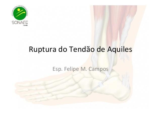 Ruptura  do  Tendão  de  Aquiles   Esp.  Felipe  M.  Campos