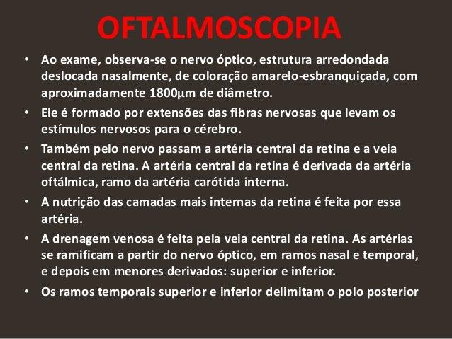 OFTALMOSCOPIA • Ao exame, observa-se o nervo óptico, estrutura arredondada deslocada nasalmente, de coloração amarelo-esbr...