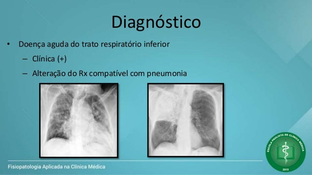 Diagnóstico • Doença aguda do trato respiratório inferior – Clínica (+) – Alteração do Rx compatível com pneumonia