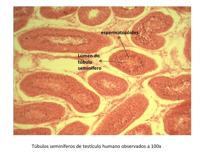 Túbulos seminíferos de testículo humano observados a 100x Lúmen do túbulo seminífero espermatozóides