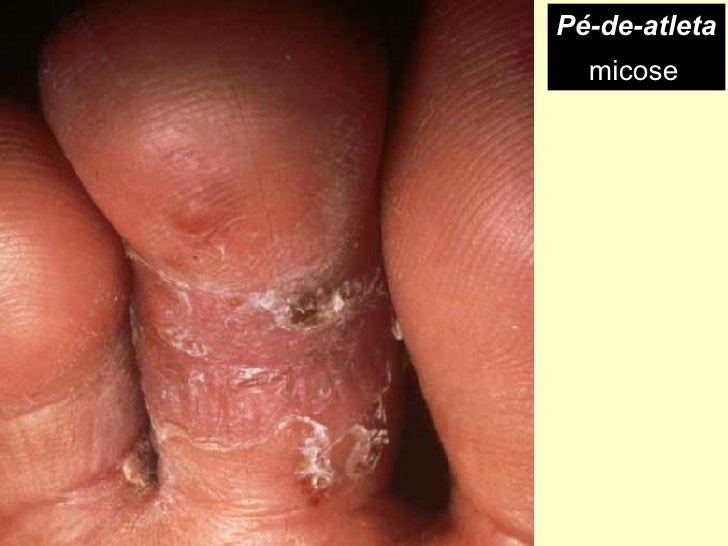 Medicina forte de um fungo de pé