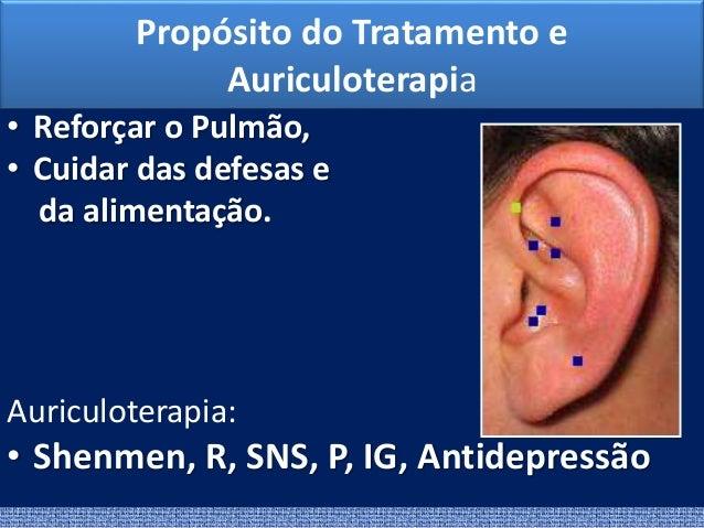 Atlas de Acupuntura (Claudia Focks) - PDF Free …