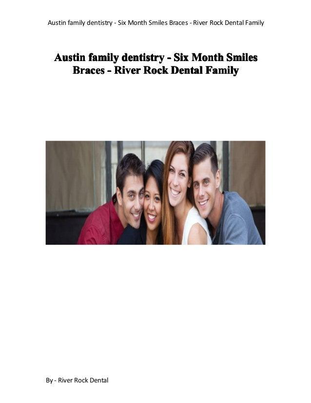 Austin family dentistry - Six Month Smiles Braces - River Rock Dental Family By - River Rock Dental AustinAustinAustinAust...