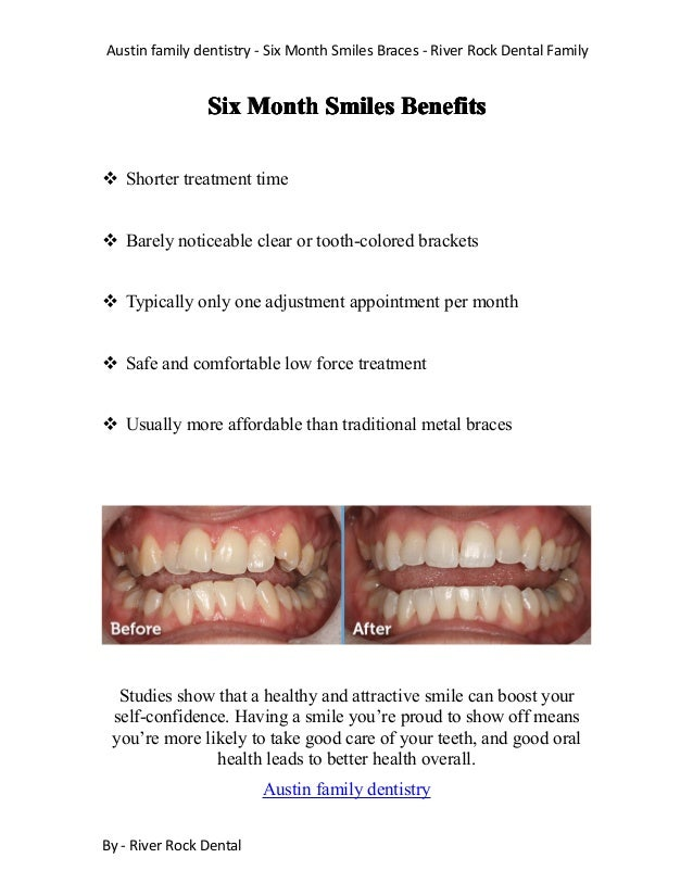 Austin family dentistry - Six Month Smiles Braces - River Rock Dental Family By - River Rock Dental SixSixSixSix MonthMont...