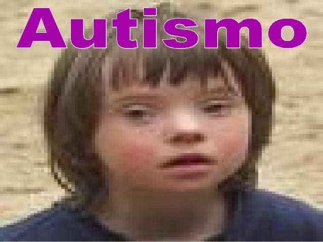 """Introdução • O termo Autismo vem do grego """"autós"""" que significa de """" si mesmo""""; • O que é Autismo? • Autismo é um transtor..."""