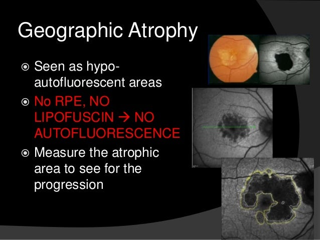 Geographic Atrophy