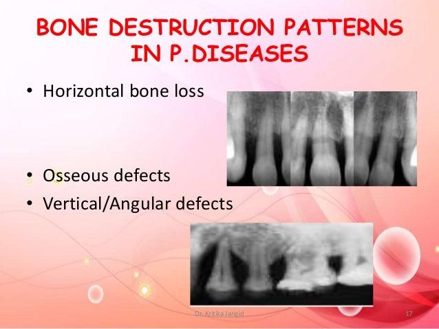 BONE DESTRUCTION PATTERNS IN P.DISEASES • Horizontal bone loss • Osseous defects • Vertical/Angular defects 17Dr. Kritika ...