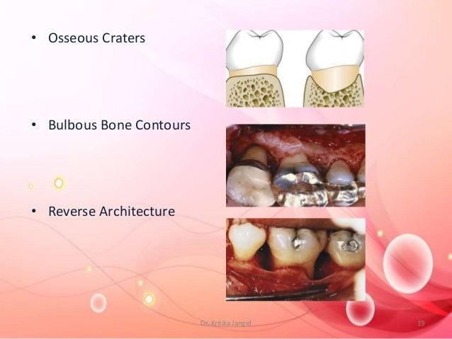 • Osseous Craters • Bulbous Bone Contours • Reverse Architecture 19Dr. Kritika Jangid