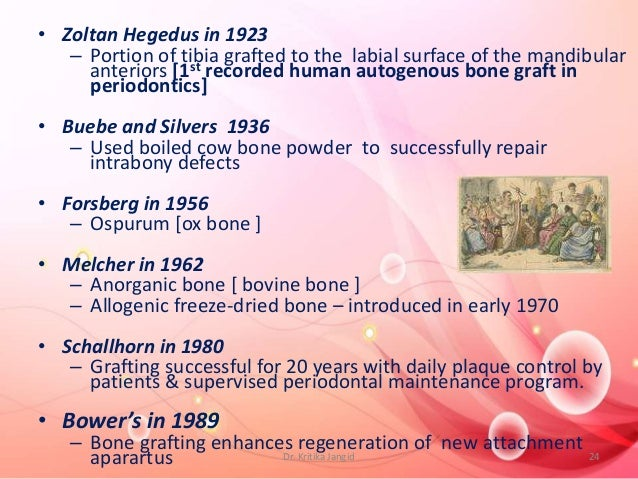 • Zoltan Hegedus in 1923 – Portion of tibia grafted to the labial surface of the mandibular anteriors [1st recorded human ...