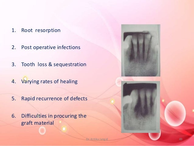 1. Root resorption 2. Post operative infections 3. Tooth loss & sequestration 4. Varying rates of healing 5. Rapid recurre...