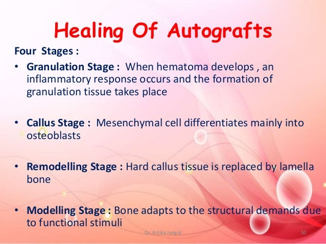 Healing Of Autografts Four Stages : • Granulation Stage : When hematoma develops , an inflammatory response occurs and the...