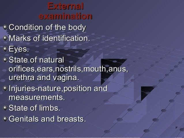 ExternalExternal examinationexamination Condition of the bodyCondition of the body Marks of identification.Marks of identi...