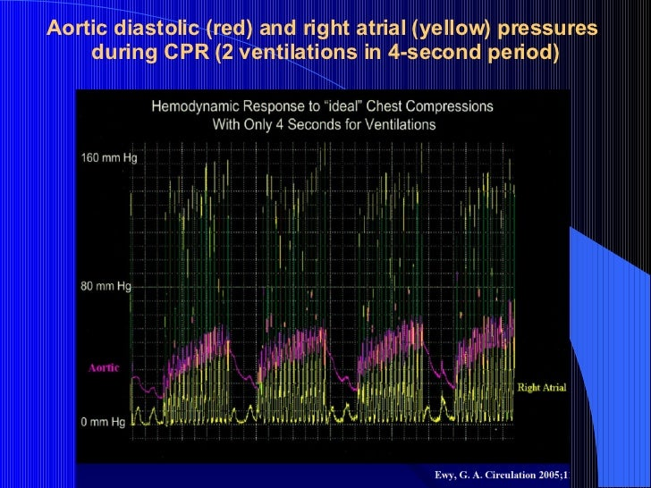 Aortic diastolic (red) and right atrial (yellow) pressures during CPR (2 ventilations in 4-second period)