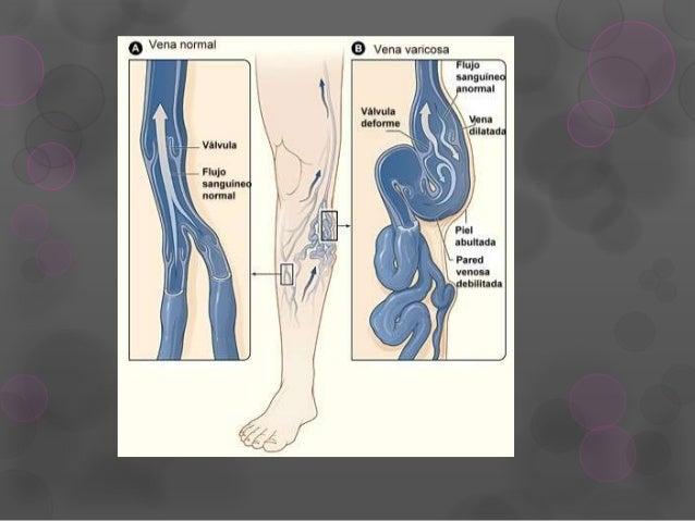 El centro de la cirugía vascular y litotripsii