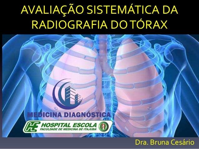 AVALIAÇÃO SISTEMÁTICA DA RADIOGRAFIA DOTÓRAX Dra. Bruna Cesário