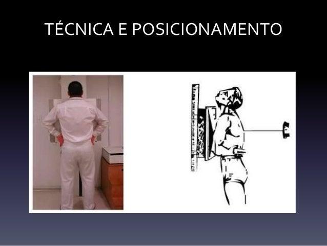 Avaliação sistemática da radiografia do tórax Slide 3