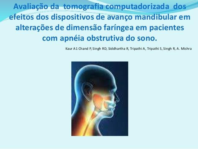 Avaliação da tomografia computadorizada dos efeitos dos dispositivos de avanço mandibular em alterações de dimensão faríng...