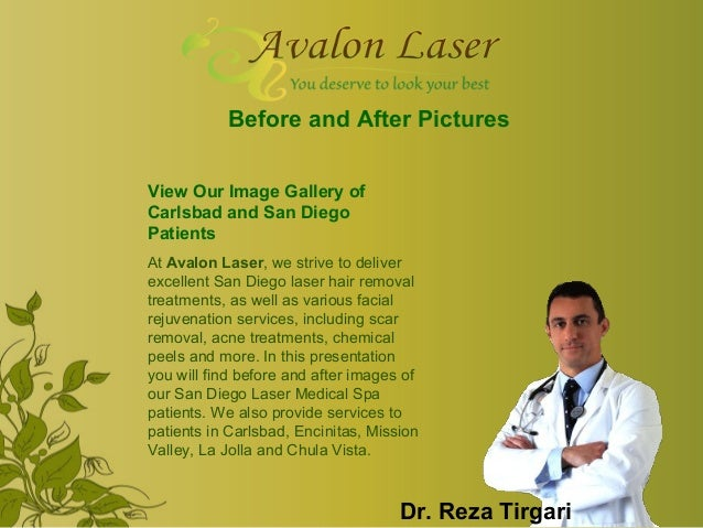 Before and After Pictures View Our Image Gallery of Carlsbad and San Diego Patients At Avalon Laser, we strive to deliver ...