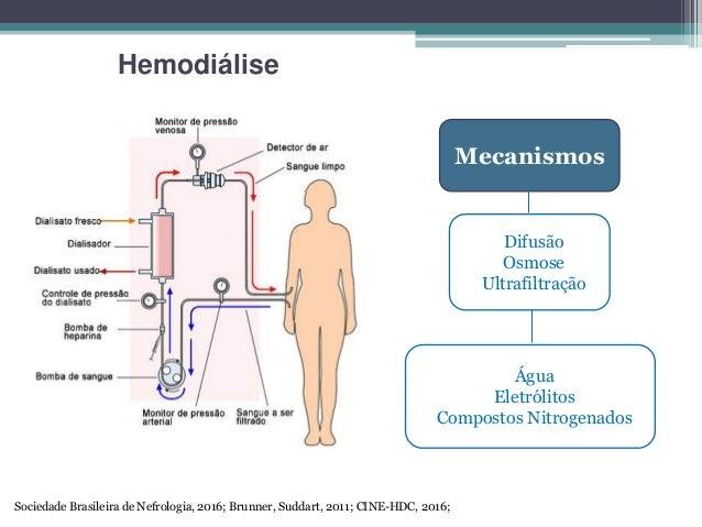 Hemodilise hemodilise mecanismos ccuart Choice Image