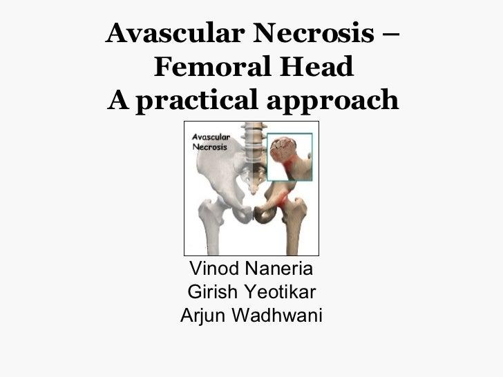 Avascular Necrosis – Femoral Head A practical approach Vinod Naneria Girish Yeotikar Arjun Wadhwani