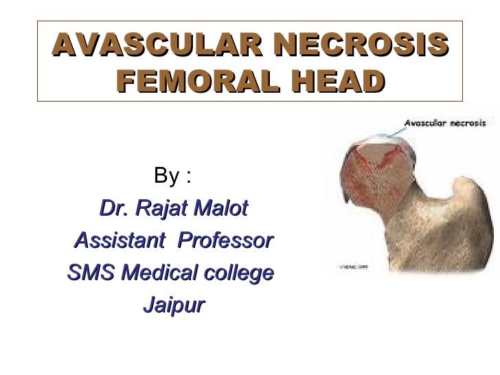 AVASCULAR NECROSIS   FEMORAL HEAD         By :   Dr. Rajat Malot Assistant ProfessorSMS Medical college        Jaipur