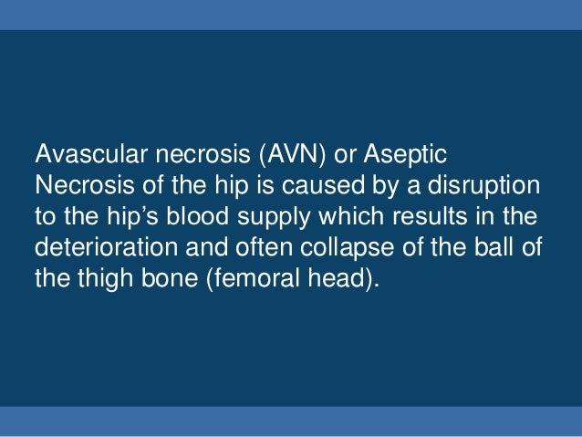 Avascular Necrosis of the Hip Slide 3