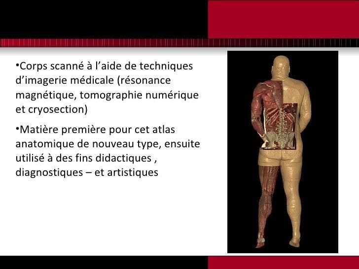 <ul><li>Corps scanné à l'aide de techniques d'imagerie médicale (résonance magnétique, tomographie numérique et cryosectio...