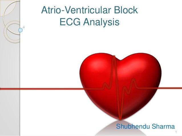Atrio-Ventricular Block ECG Analysis Shubhendu Sharma 1