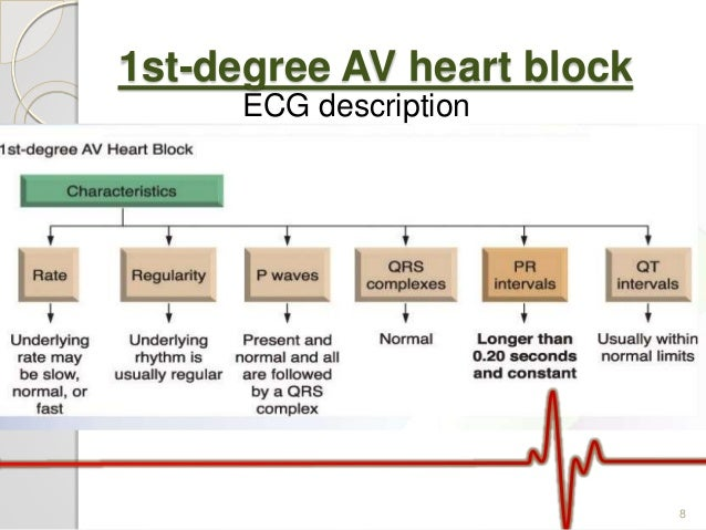 Av block ecg analysis 1st degree av heart block ecg description 8 ccuart Gallery