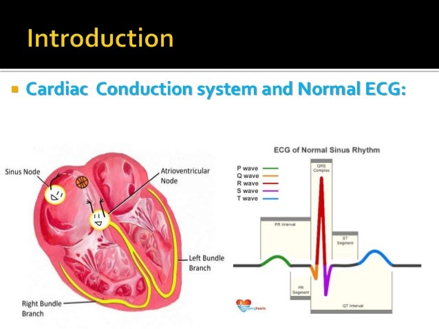 Heart block cardiac conduction system and normal ecg 3 ccuart Image collections