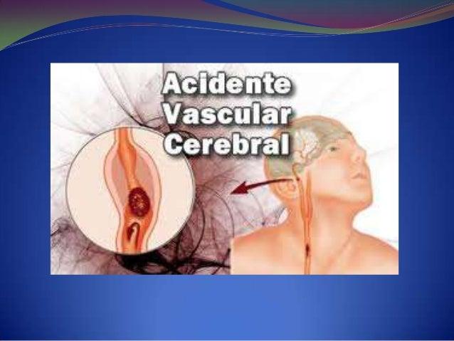 O que é um Acidente Vascular            Cerebral (AVC) O AVC é vulgarmente chamado de derrame cerebral. Este é caracteriz...