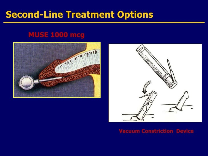 Image Gallery Muse 1000 Mg Goodrx Coupons