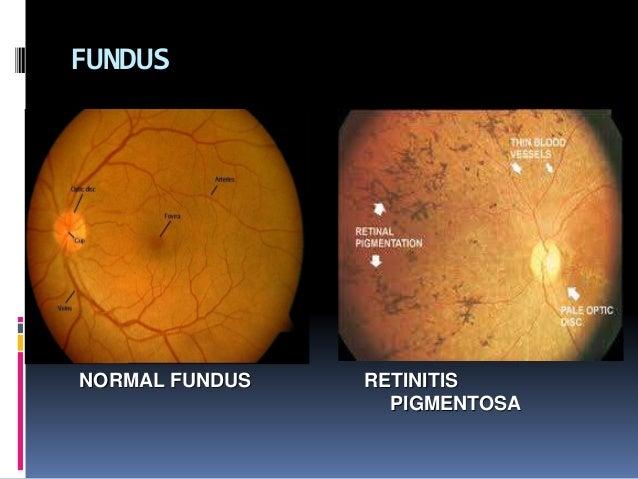 Case Presentation On Retinitis Pigmentosa Low Vision Aid