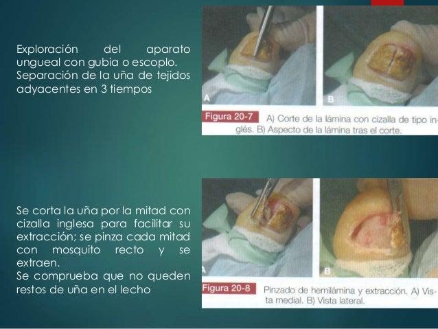Exploración del aparato ungueal con gubia o escoplo. Separación de la uña de tejidos adyacentes en 3 tiempos Se corta la u...