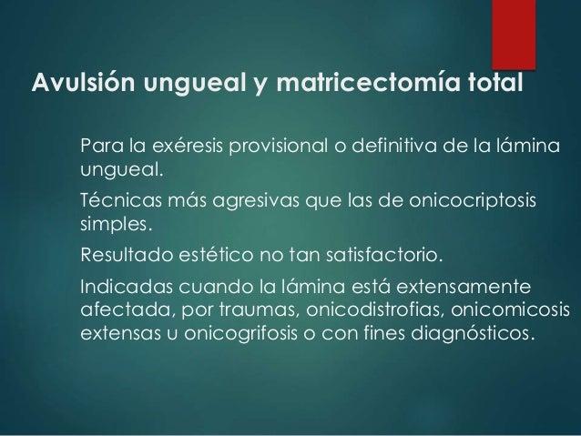 Avulsión ungueal y matricectomía total Para la exéresis provisional o definitiva de la lámina ungueal. Técnicas más agresi...