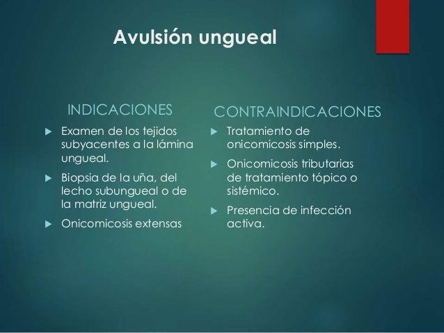 Avulsión ungueal INDICACIONES  Examen de los tejidos subyacentes a la lámina ungueal.  Biopsia de la uña, del lecho subu...