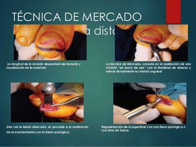 TÉCNICA DE MERCADO (Exostectomía distal) La longitud de la incisión dependerá del tamaño y localización de la exóstosis La...
