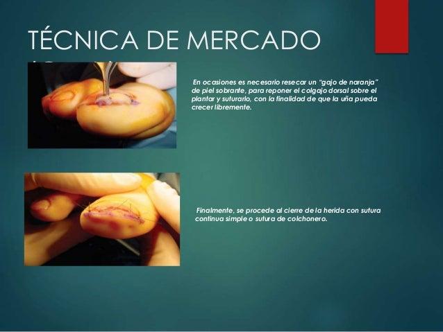 """TÉCNICA DE MERCADO (Cont.) En ocasiones es necesario resecar un """"gajo de naranja"""" de piel sobrante, para reponer el colgaj..."""